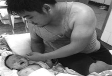 一保安开水泼业主致1岁幼童烫伤严重 赔偿11万